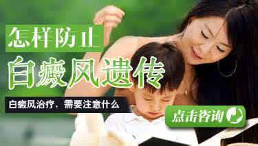 预防遗传性白癜风