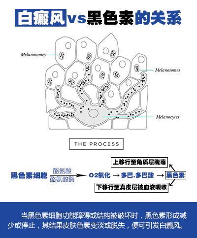 合肥华夏黑色素细胞培植术