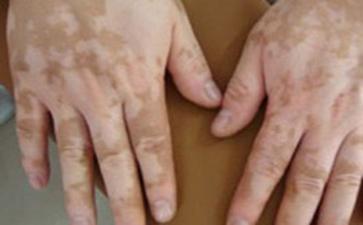 和白斑病患者接触会被感染吗