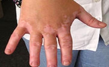 白癜风是一种易复发难治好的疾病吗