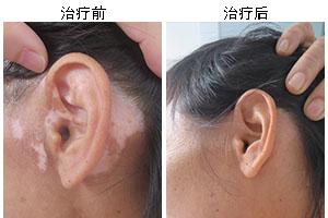 白癜风疾病会不会使头发变白