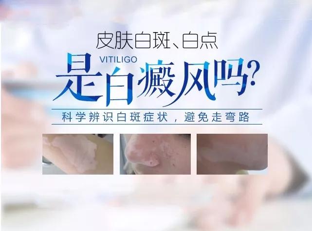 朱光斗名医工作室:白癜风早期症状
