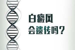 白癜风的遗传受什么影响