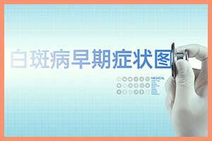 中医治疗白癜风来增加黑色素安全吗